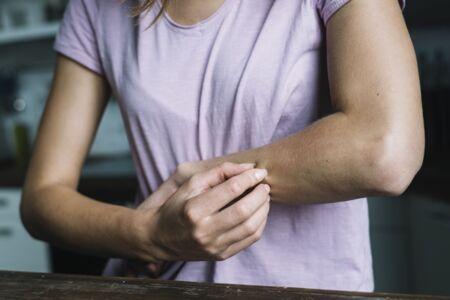 könyök és térd pikkelysömörének kezelése