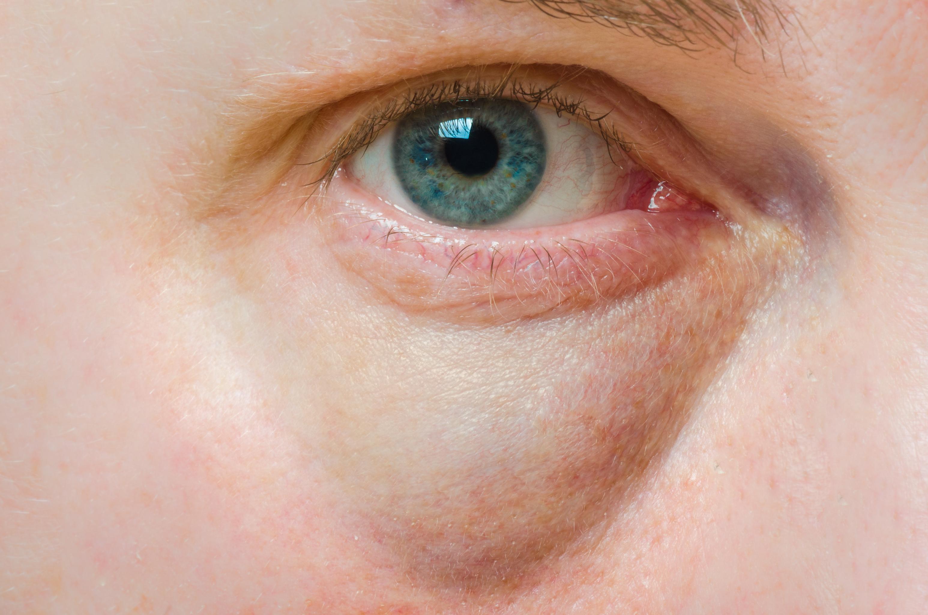 viszkető vörös folt a szem alatt)