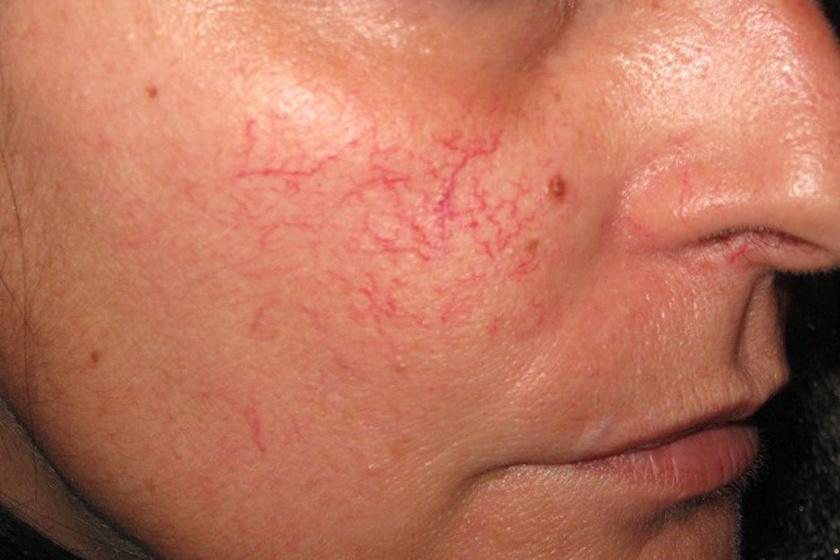 Maszk zabpehely származó foltok után pattanások