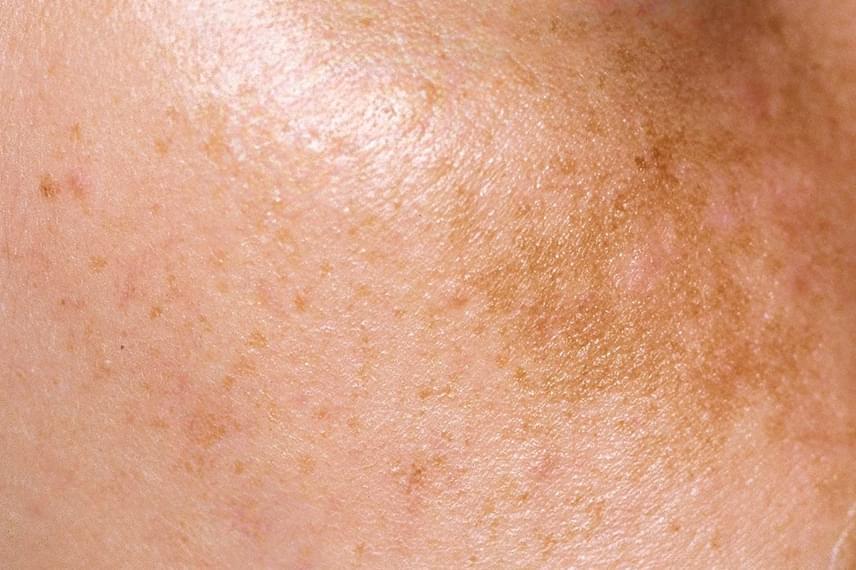 vörös foltok jelennek meg a bőr megérintésekor