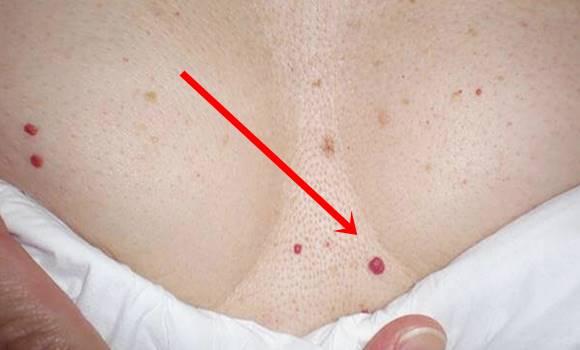 hogyan lehet eltávolítani a bőrön lévő vörös foltokat