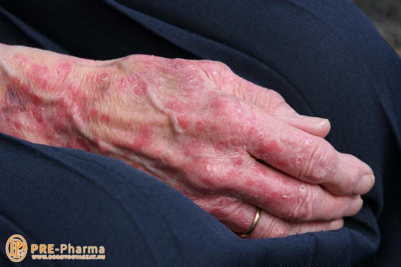 Miért rosszabbodnak a pikkelysömör tünetei ősszel és télen?