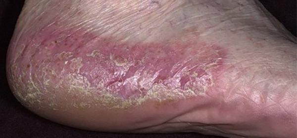 Etretinát psoriasis