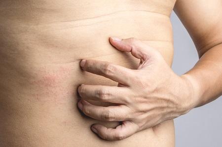 hónalj alatt vörös foltok és viszketés koplalással meggyógyíthatja a pikkelysömöröt