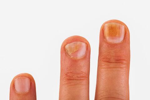 kenőcs bőr ereje pikkelysömörből krónikus pikkelysömör hogyan kell kezelni