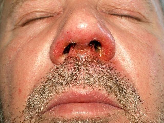 vörös folt az arcon a száj közelében