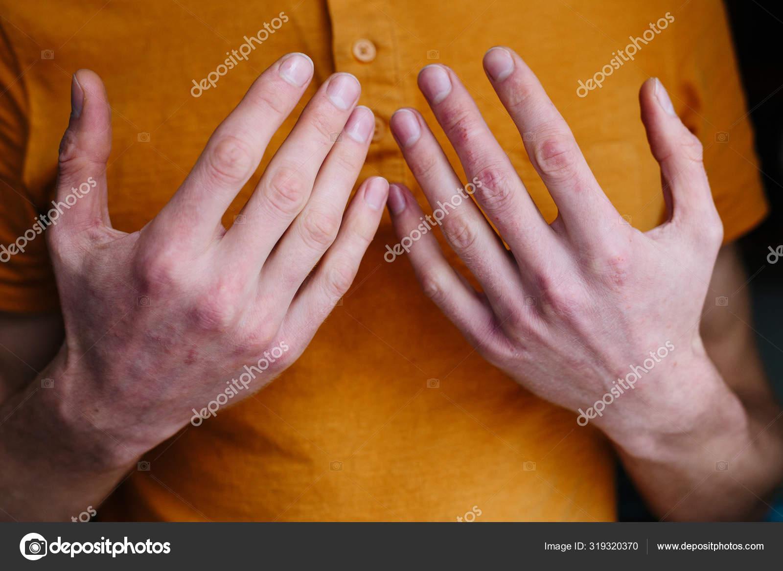 pikkelysömör kezelése amarantolajjal