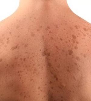 hogyan kell kezelni a vörös foltot a nyakon)
