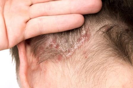 fejbőr pikkelysömör tünetei és kezelése fotó