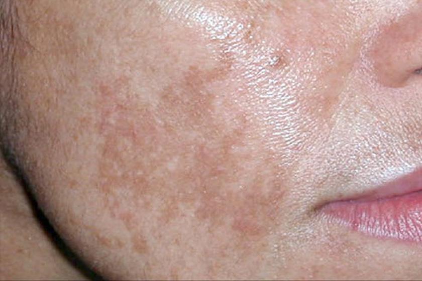 az arcbőr foltjai pirosak, mint kezelni