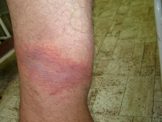 egy nagy vörös folt a bőrön fáj