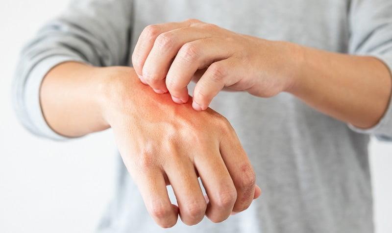 kurkuma pikkelysömör kezelésére
