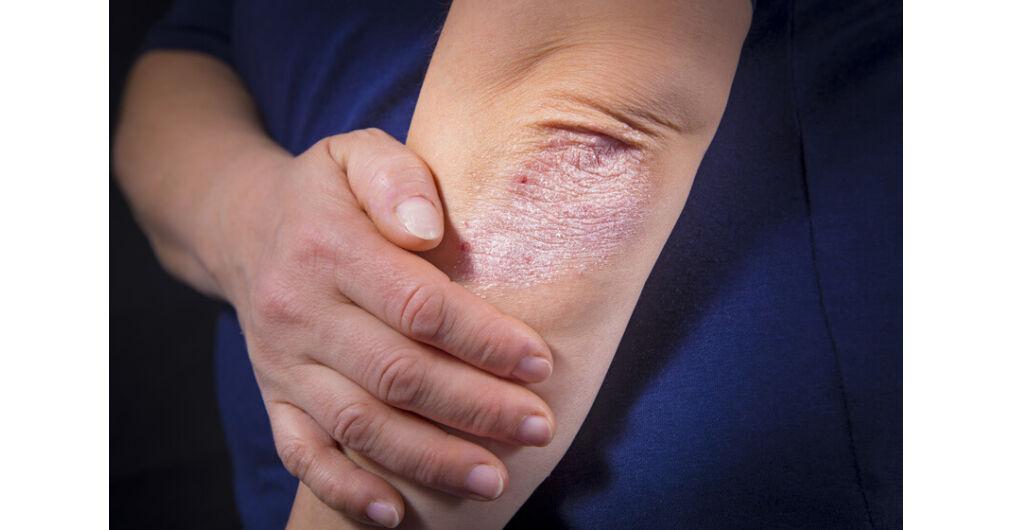 hogyan lehet kezelni az egyszer pikkelysömör vörös foltok a hónalj alatt és az arcon