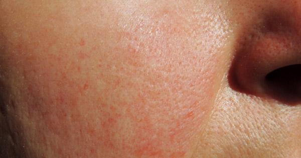 az arc bőrén vörös foltok fotó hogyan lehet eltávolítani a vörös foltokat a hasán