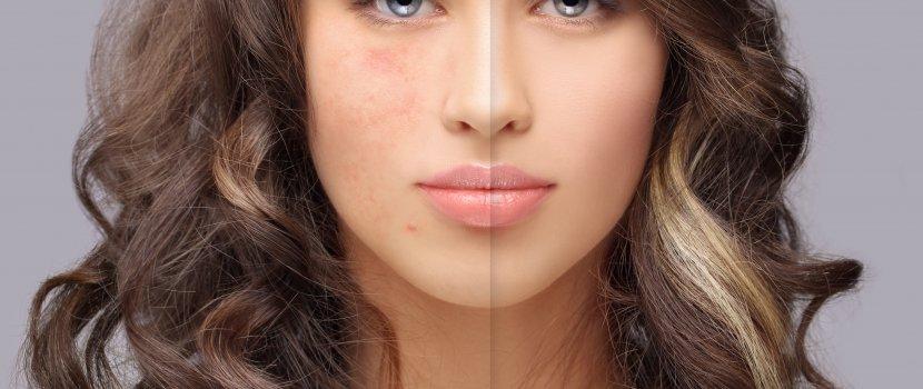 amit az arcon vörös foltok bizonyítanak