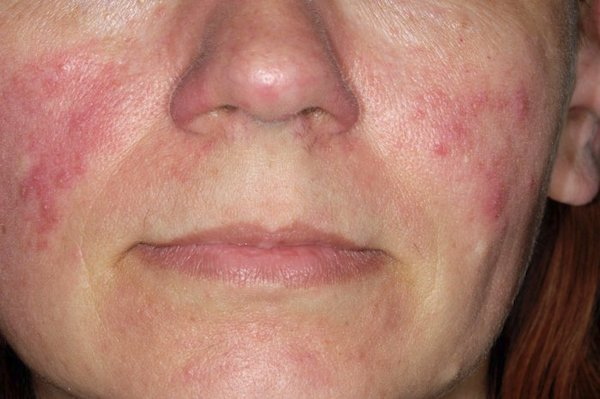 vörös foltok jelennek meg az arcon, a bőr hámlik)