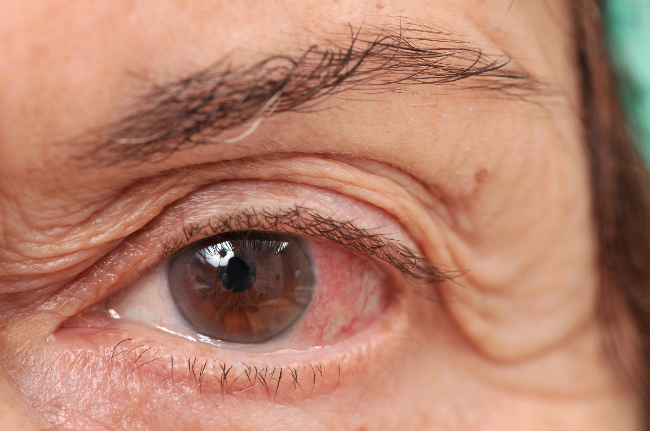 Gyulladt, vörös szem: Hogyan kezelje?