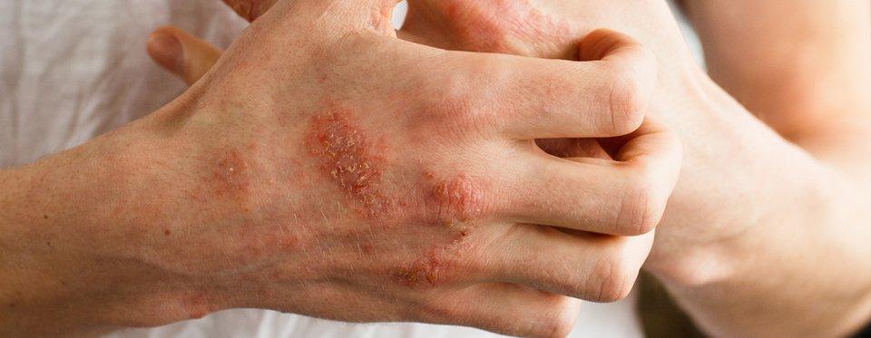 ekcma pikkelysömör dermatitis kezelse)