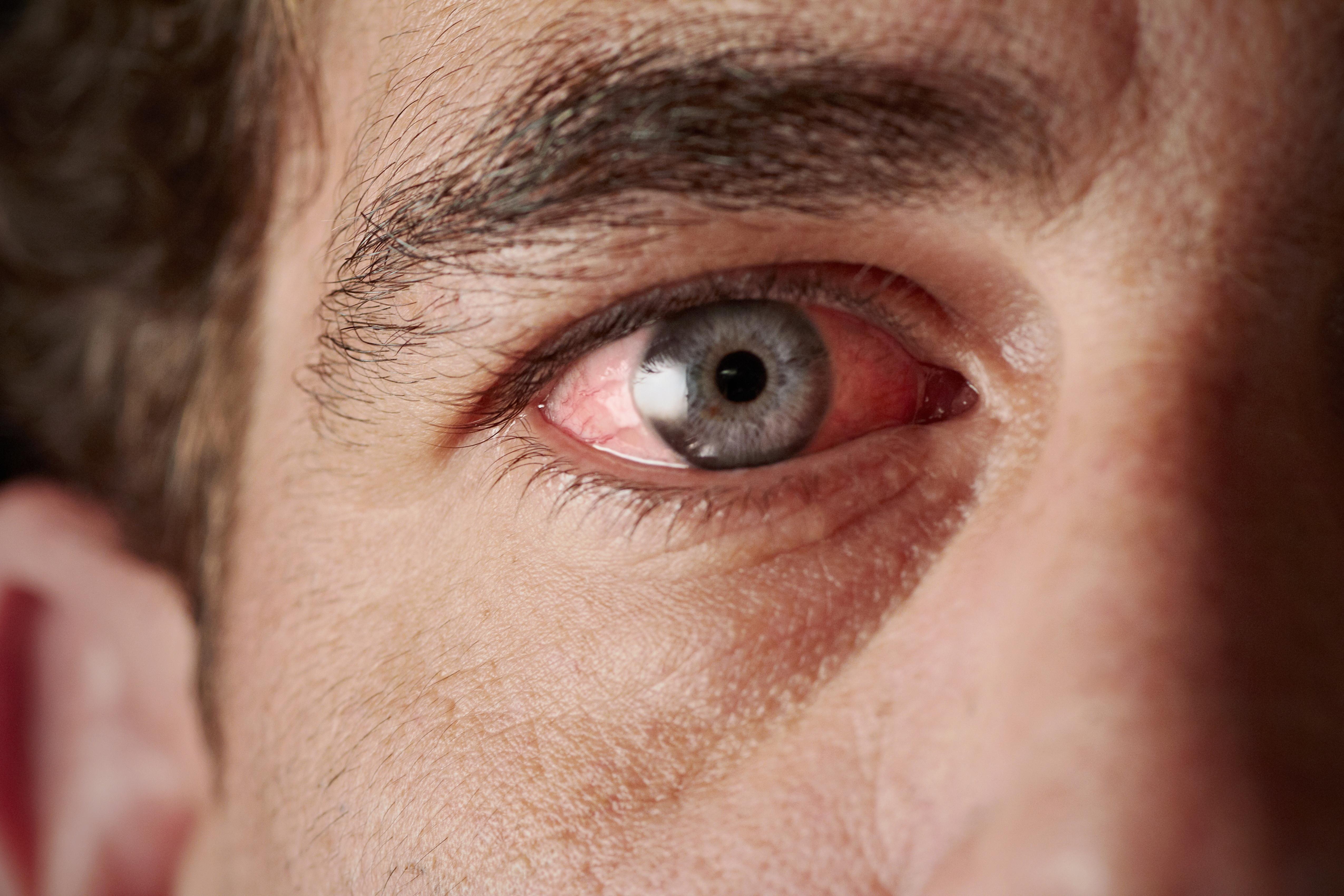 a szem alatt vörös foltok és pelyhek vannak