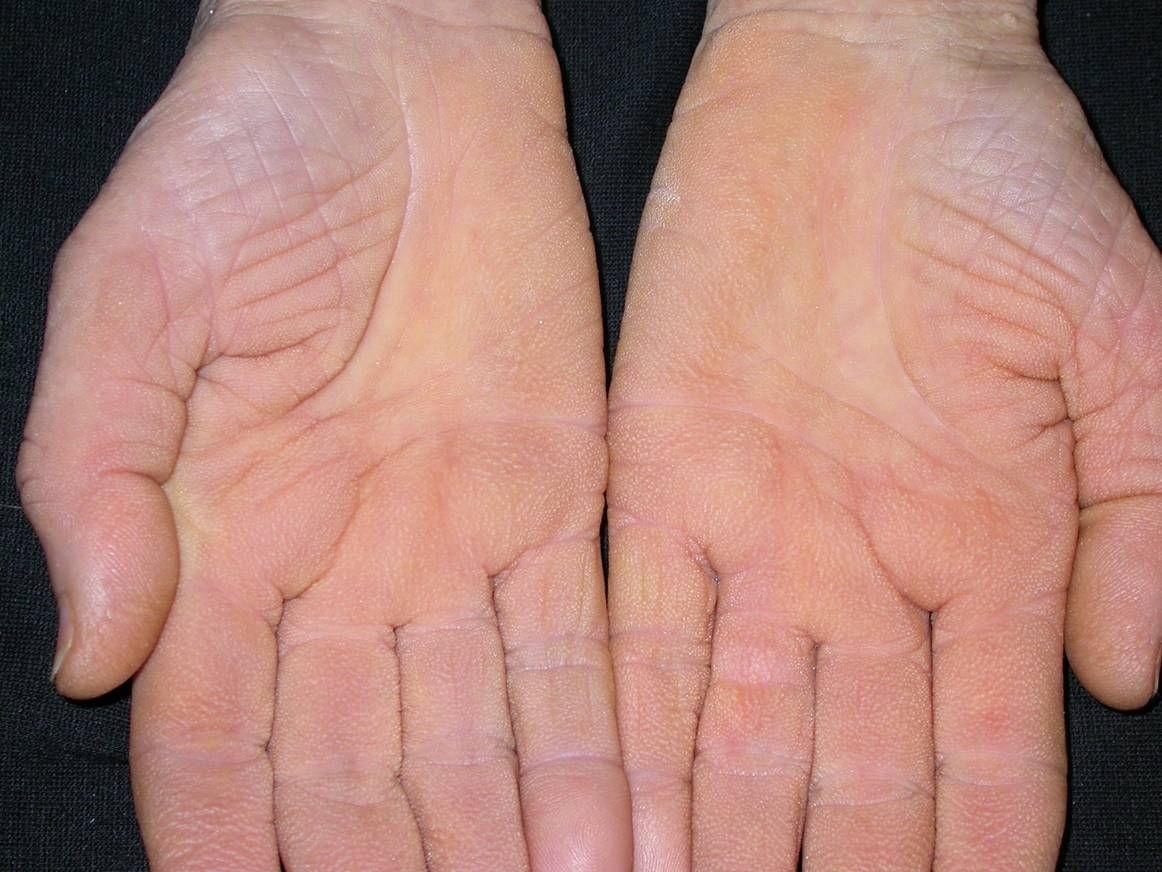 vörös foltok vannak a kezeken a kéz felett