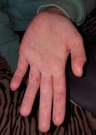 vörös foltok az ujjakon viszketnek)