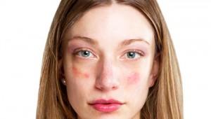 pikkelysömör a szeméremrészen egy nő kezelése hogyan lehet pikkelysömör kezelni Fehéroroszországban