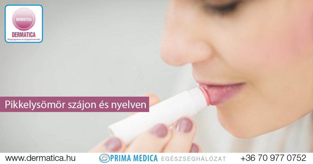 gyógyszerek tesztelése pikkelysömörhöz)