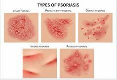 Pikkelysömör (Psoriasis) - Oxigéncenter - Hiperbár Blog