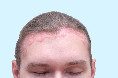 pikkelysömör képek vörös foltok az arcon és a nyakon nagyon viszketnek