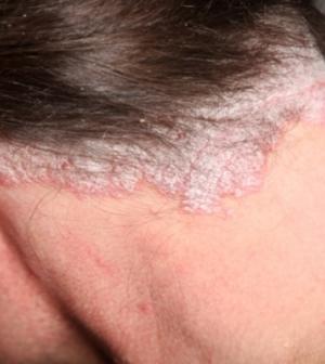 hogyan lehet enyhíteni a viszkető fejbőrt pikkelysömörrel