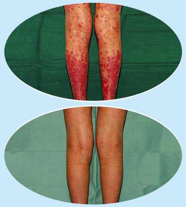 vörös folt jelent meg a bőrön nagy piros folt a bőr fotóján