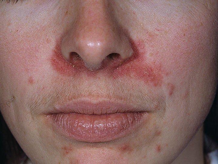 irritáció az arcon az orr körül vörös foltok formájában test gél pikkelysömör