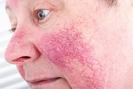 irritáció az arcon vörös foltok formájában a krémből)