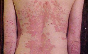 Izland pikkelysömör kezelése meleg vörös folt a kezén