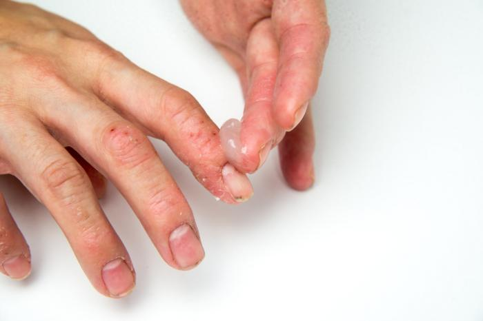 pikkelysömör kezelése shamil