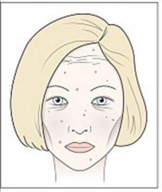 kis vörös foltokat öntött ki az arcon)