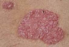 pikkelysömör - pikkelysömör kezelése népi gyógymódokkal