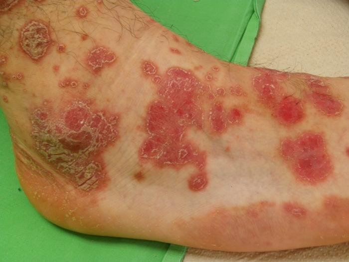 duzzadt lábak vörös foltok vörös foltok a bőrön HIV fotóval
