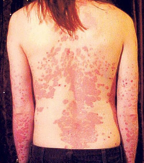 megszabadult a pikkelysömör diétától Nilova Pustyn pikkelysömör kezelése