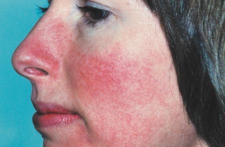 mint gyorsan eltávolítani az arcon lévő vörös foltokat vörös foltok és a könyök hámlása