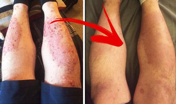 pikkelysömör barbera kezelés metotrexáttal vörös folt viszket az arcon