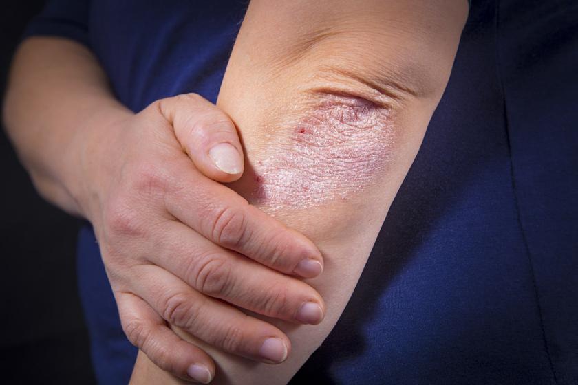 pikkelysömör korai stádiumú kezelése fájdalmas vörös foltok a lábakon