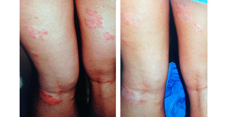 pikkelysömör kezelés előtt és után fotó)