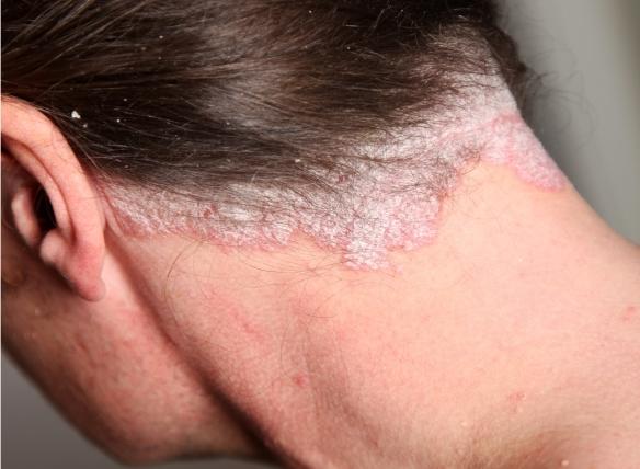 pikkelysömör kezelése a fej kenőcsökön