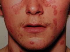 pikkelysömör kezelésére az arcon, mint