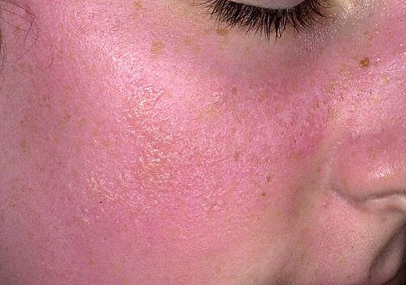 vörös foltok az arcon egy hónapig hogyan kezeli a pikkelysömör véleményt