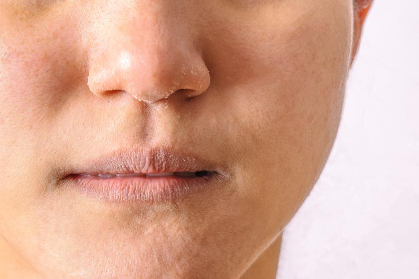 száraz bőr, vörös foltokkal az arcon