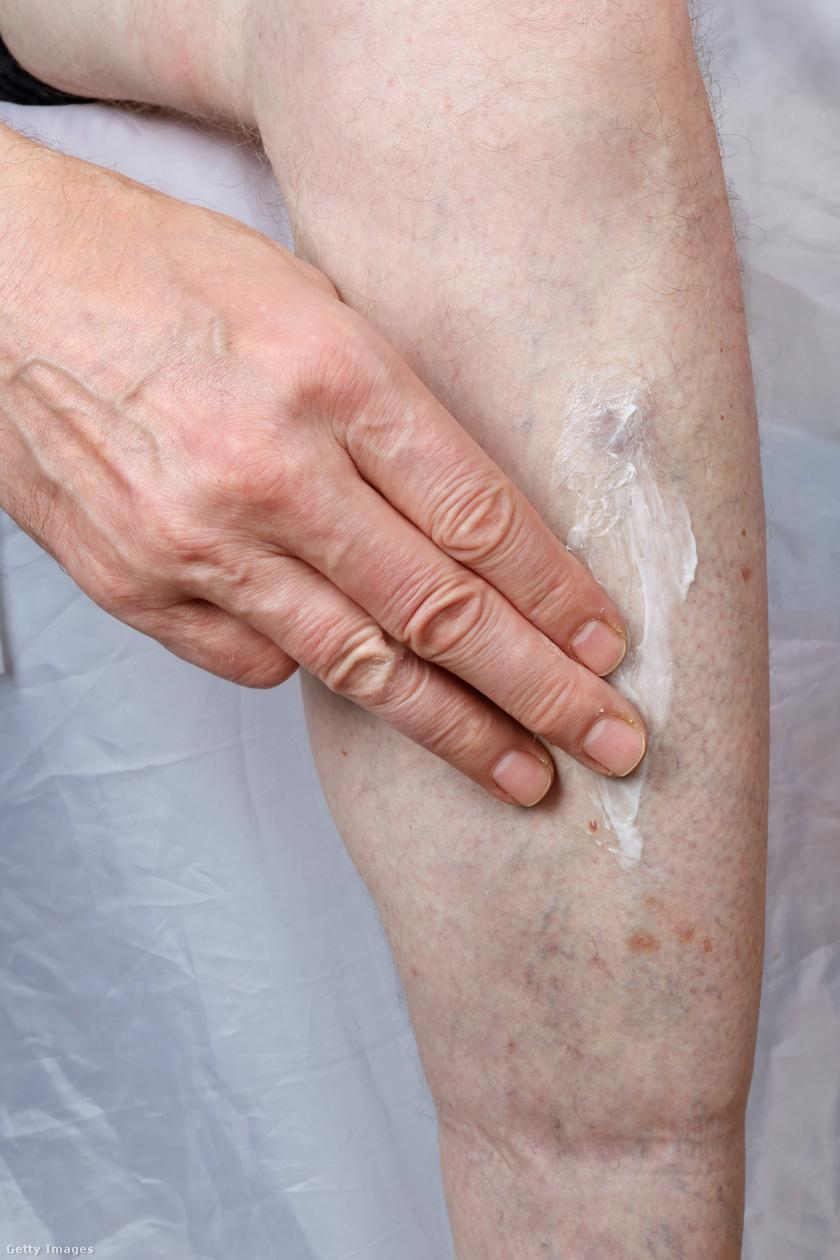 vörös folt a lábán fáj és forró)