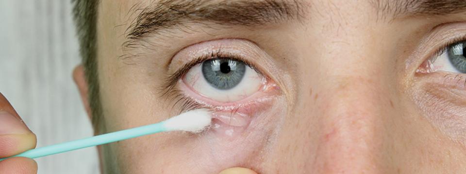 vörös folt a szem alatt, hogyan lehet eltávolítani