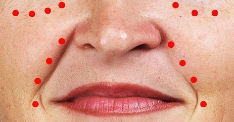 vörös folt az ember arcán)